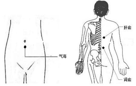 针灸拔罐治疗黄褐斑的具体方法-针灸拔罐去黄褐斑