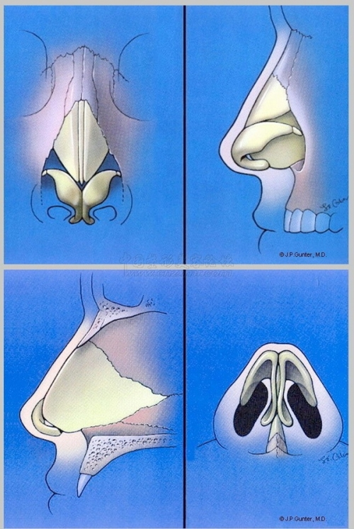 请看左上图:鼻子的结构其实从正面可以分为三个部分:鼻骨,上外侧
