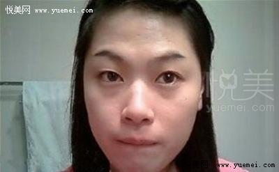 【双眼皮+开外眼角+驼峰鼻矫正手术后记】帮我看看做