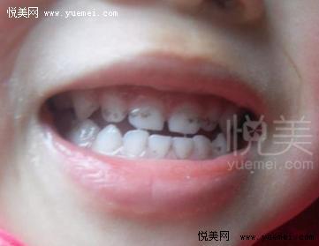 儿童牙齿发黑原因