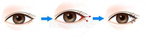 你适合开内眼角还是外眼角?